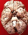 Human brain inferior view.JPG
