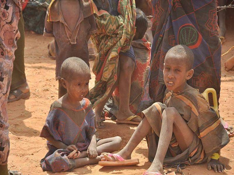 Datei:Malnourished children, weakened by hunger.jpg