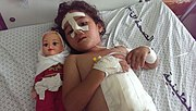 Shaymaa al-Masri, five years old, at a-Shifaa Hospital, Gaza. Shaymaa was injured when her uncle's house was bombed in the early afternoon of 9 July 2014