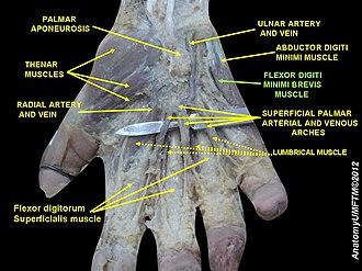 Flexor digiti minimi brevis muscle (hand) - Image: Slide 16RRR