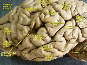 Middle frontal gyrus - Image: Slide 4HAN