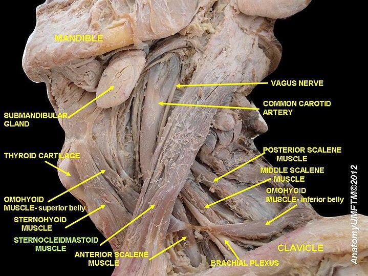 Músculo esternocleidomastoideo - eAnswers