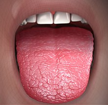 Xerostomia - Dry Mouth.jpg