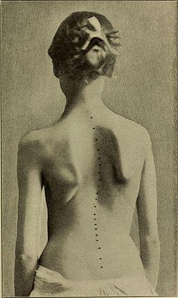 A treatise on orthopedic surgery (1903) (14578123550)