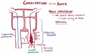 Файл:Aortic coarctation.webm