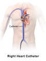 Blausen 0196 Catheter RightHeart Body.png