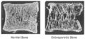 Bone Comparison of Healthy and Osteoporotic Vertibrae.png