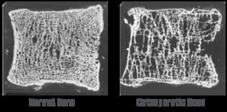 Vitamin D deficiency - Normal bone vs. Osteoporosis