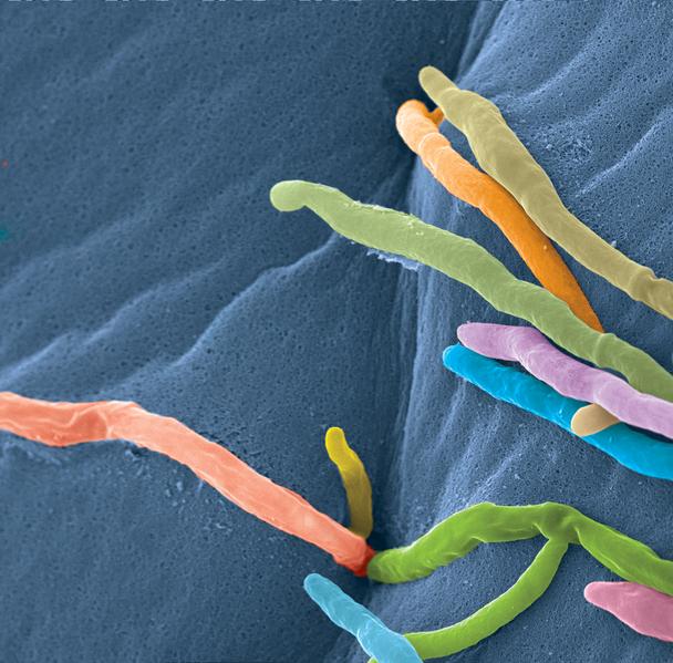 Figura 3- Micrografia elettronica a scansione di C.tropicalis