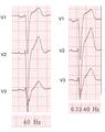 De-Filter settings (CardioNetworks ECGpedia).png