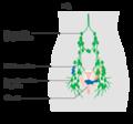 Diagram-showing-stage-3C1-cervical-cancer.png