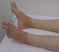 Dijabetesno stopalo nakon amputacije prstiju IMG 0423.JPG