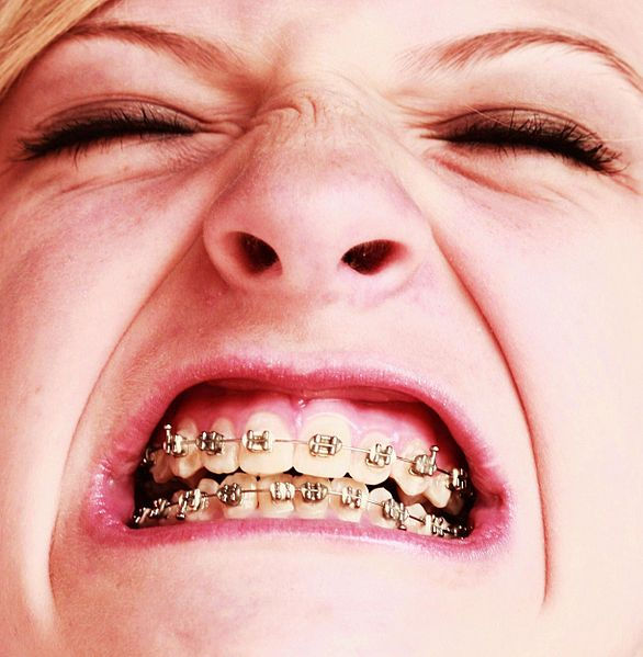 File:Free Awesome Girl With Braces Close Up.jpg