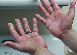 Picture of hands on capecitabine exhibiting signs of chemotherapy-induced acral erythema