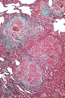 Mikroskopický obraz - exogenní alergická alveolitida.