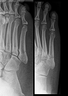 Перелом плюсневых костей — Википедия