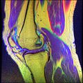Knee MRI, T1T2PD 13.jpg