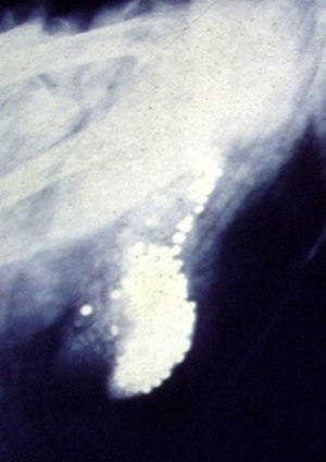 Shot (pellet) - X-ray of lead shot accumulated in the gizzard of a dead swan