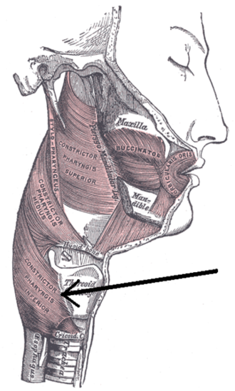 Inferior pharyngeal constrictor muscle - Muscles of the pharynx and cheek. (Constrictor pharyngis inferior visible at bottom left.)