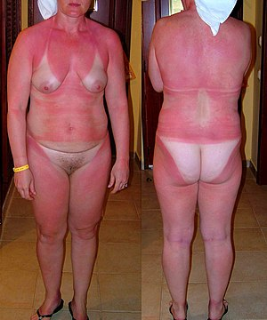 Naked heavily burnt female body..jpg