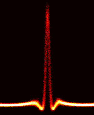Optical rogue waves - Image: Peregrine soliton in optics