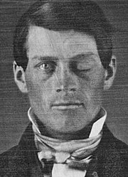 phineas p gage
