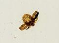 Pthirus pubis (YPM IZ 093644).jpeg