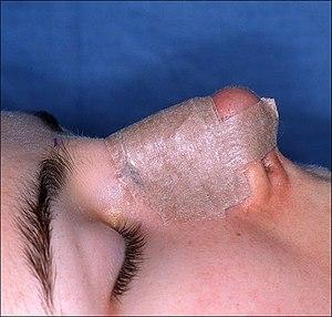 English: Rhinoplasty. End of procedure. The me...