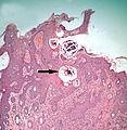 Sarcoptic-mites-in-skin.jpg