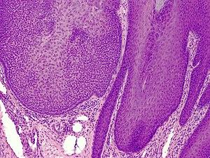Trichilemmoma - Wikipedia