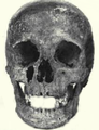 Skull of Agnes of Chatillon.png