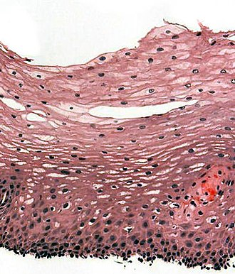 Stratified squamous epithelium - H&E stain of biopsy of normal esophagus showing the stratified squamous cell epithelium.