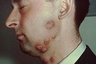 Tinea barbae fungal infection of the hair
