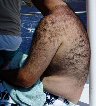 Hair removal - Body hair on an unusually hirsute male