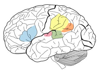 Language Areas of the brain. The Angular Gyrus is represented in orange, Supramarginal Gyrus is represented in yellow, Broca's area is represented in blue, Wernicke's area is represented in green, and the Primary Auditory Cortex is represented in pink. Brain Surface Gyri.SVG
