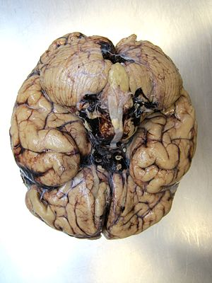 Brain autopsy hemorrhage bottom view.JPG