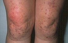 lupus eritematoso sistémico manifestaciones cutáneas de diabetes