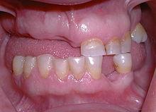 """Résultat de recherche d'images pour """"édentation partielle dentaire"""""""