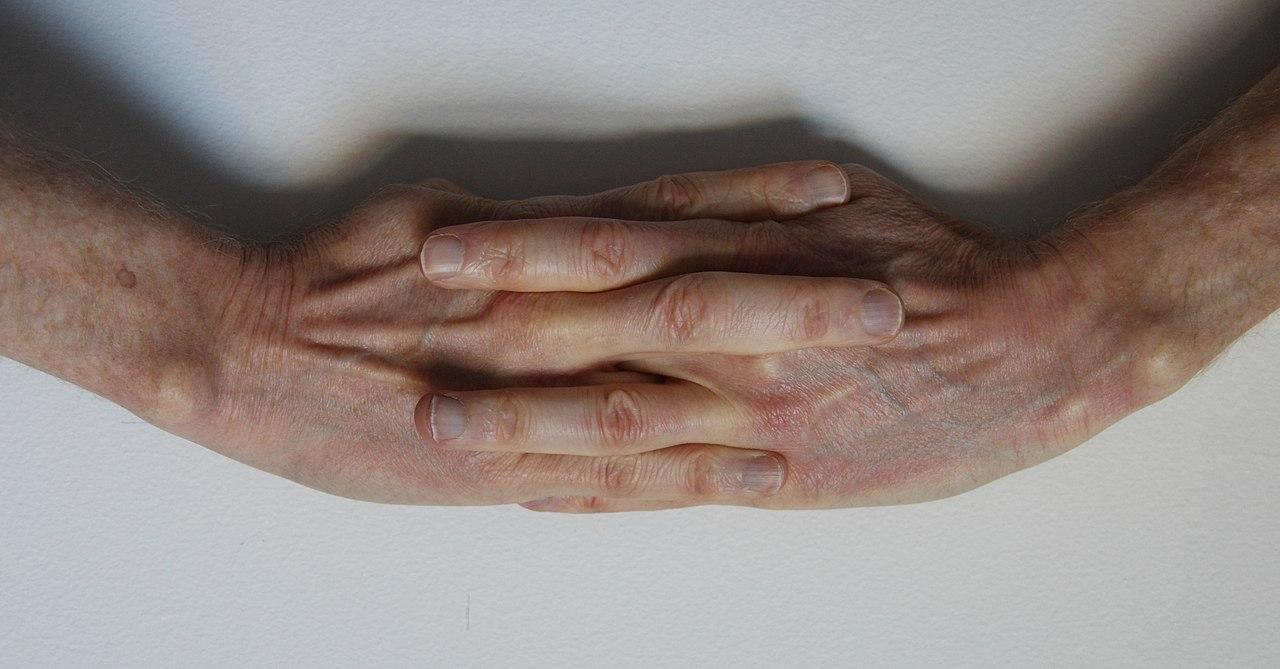 springer finger