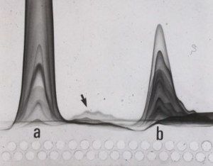 "Immunoelectrophoresis - Fused rocket immunoelectrophoresis of an affinity chromatographic separation of human serum proteins on con A. A 15 microlitre sample from each fraction is applied (starting from left) and let to diffuse about one hour, then electrophorsis was performed over night. Peak ""a"" is unretained, peak ""b"" is retained and eluted with methyl-mannose, the arrow indicates som slightly retained proteins."