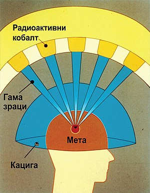Gamma Knife Graphic-sr.jpg