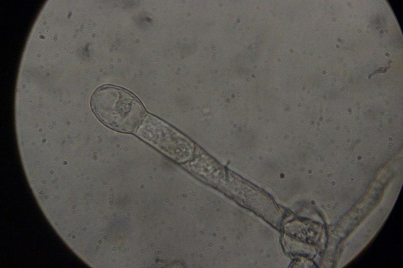 File:Golovinomyces ambrosiae on Jerusalem Artichoke - Helianthus tuberosus (44443969885).jpg