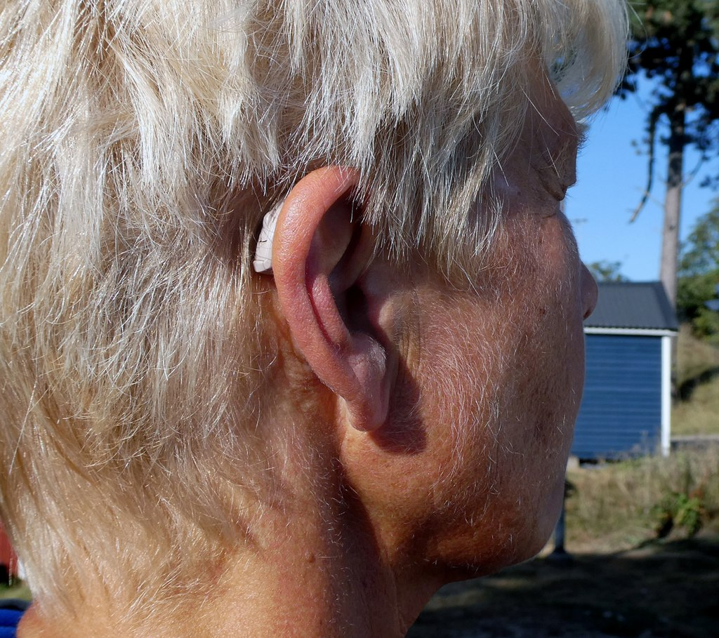 How hearing aids can help alleviate 'tinnitus'