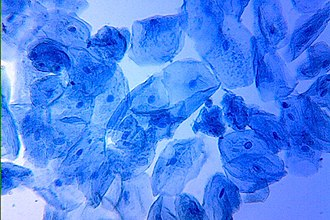 Methylene blue - Human cheek cells stained with methylene blue