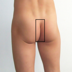 Intergluteal cleft.png