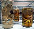 Istituto di anatomia patologica, museo, campioni 01 feti malformati.JPG