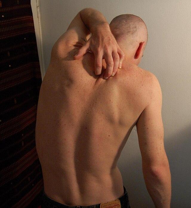 Itch - Wikiwand