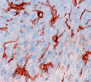 Langerhans Cells in Normal Epidermis, CD1a Immunostain (4435883030).jpg