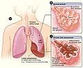 Lobar pneumonia illustrated.jpg