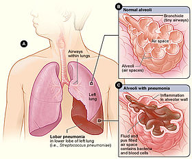 Lobar pneumonia illustrated.jpg